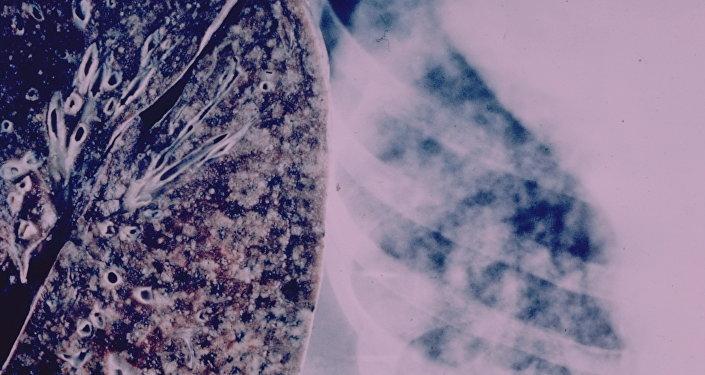 پس از ختم کرونا ویروس، توبرکلوز زندگی میلیونها تن را تهدید میکند