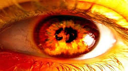 چگونه چشم چرانی را درمان کنیم؟